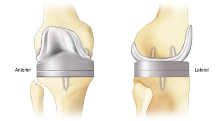 Knee Arthritis and Replacement