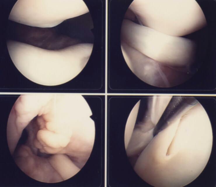 Arthroscopic knee surgery knee surgery northampton uk diagram showing keyhole surgery on the knee ccuart Gallery