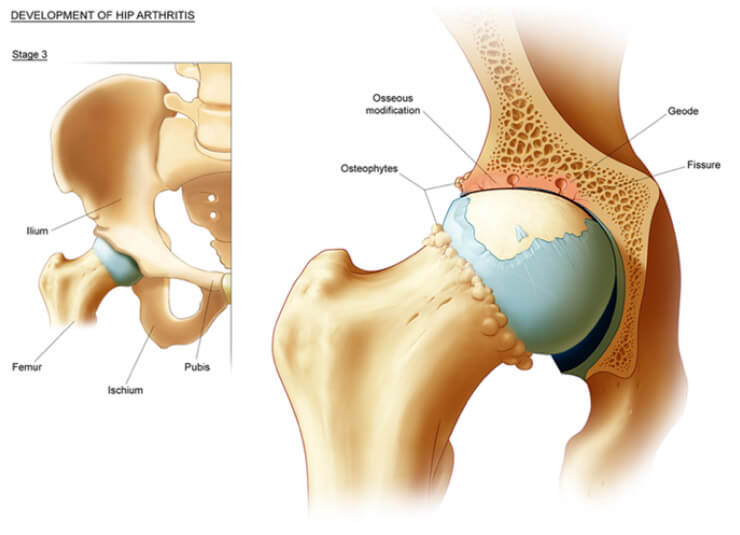 Arthritis Of The Hip Edward Crawfurd Orthopaedic Surgeon