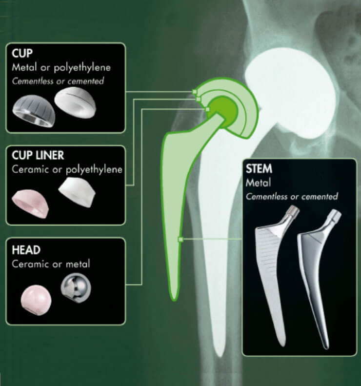 Diagram of Hip Replacement